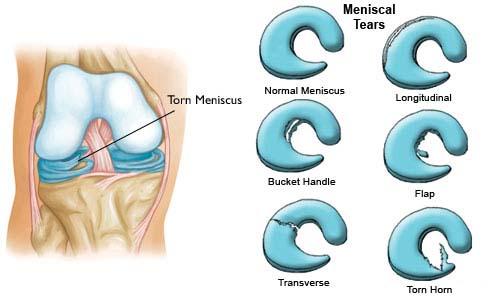 Meniscus tear 6 weeks