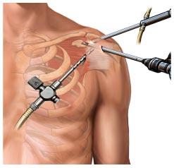 якорные фиксаторы для плечевого сустава цена