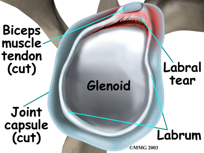 Shoulder diagram labrum